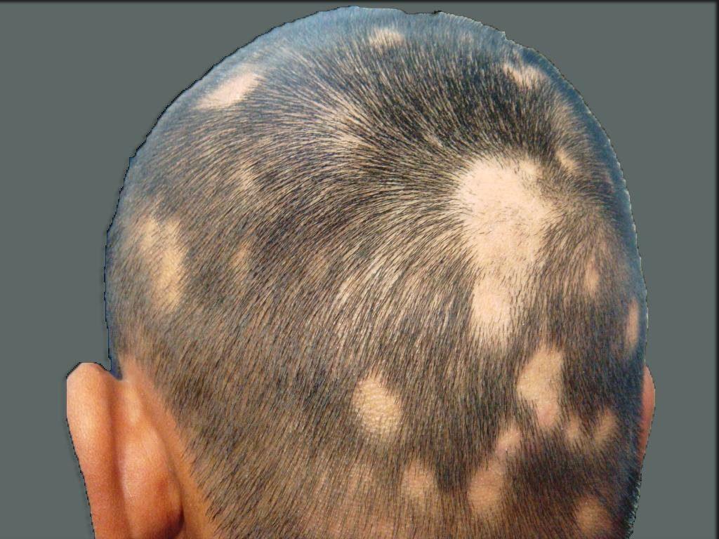 صورة مرض الثعلبة , مصدر هذا المرض