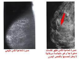 بالصور مرض سرطان الثدي , امراض الثدى وخطورتها 6273 5