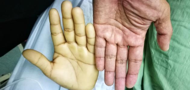 بالصور اعراض فقر الدم , اهم اعراض فقر الدم 6304