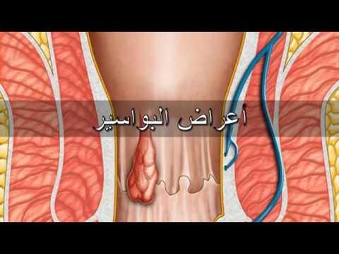 صورة اعراض البواسير , هل تعرف ما هى اسباب و اعراض البواسير ؟