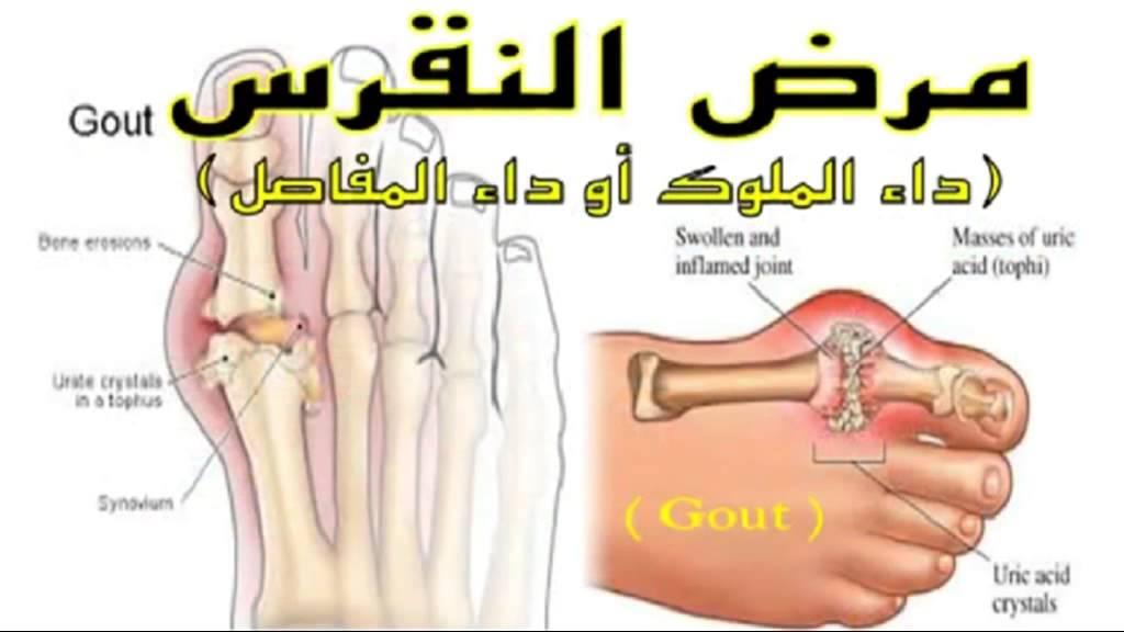 بالصور علاج النقرس , طريقة للتخلص من النقرس 2234