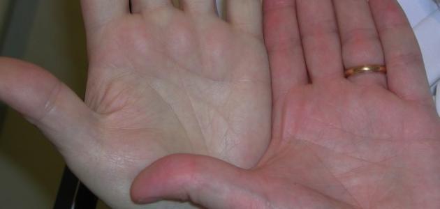 صور مرض فقر الدم , علاج مرض الانيميا