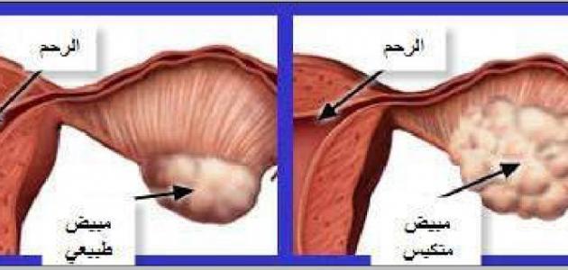 صورة اعراض تكيس المبايض , اسباب وعلاج تكيس المبايض