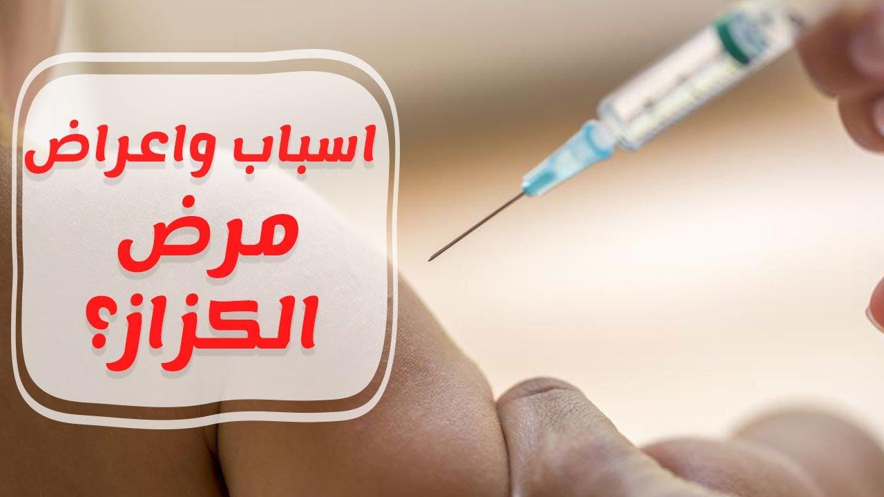 صور مرض الكزاز , ما هو مرض الكزاز واعراضه