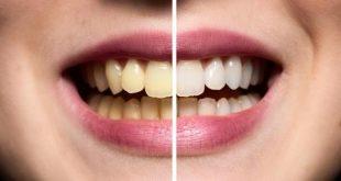 صوره كيفية تبييض الاسنان , ما هي طريقة تبيض الاسنان