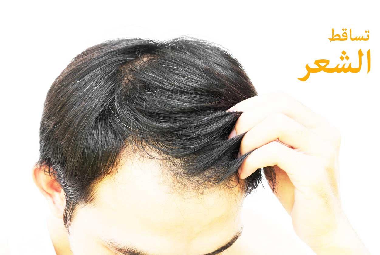 صوره علاج تساقط الشعر للرجال , افضل طرق لوقف تساقط الشعر عند الرجال