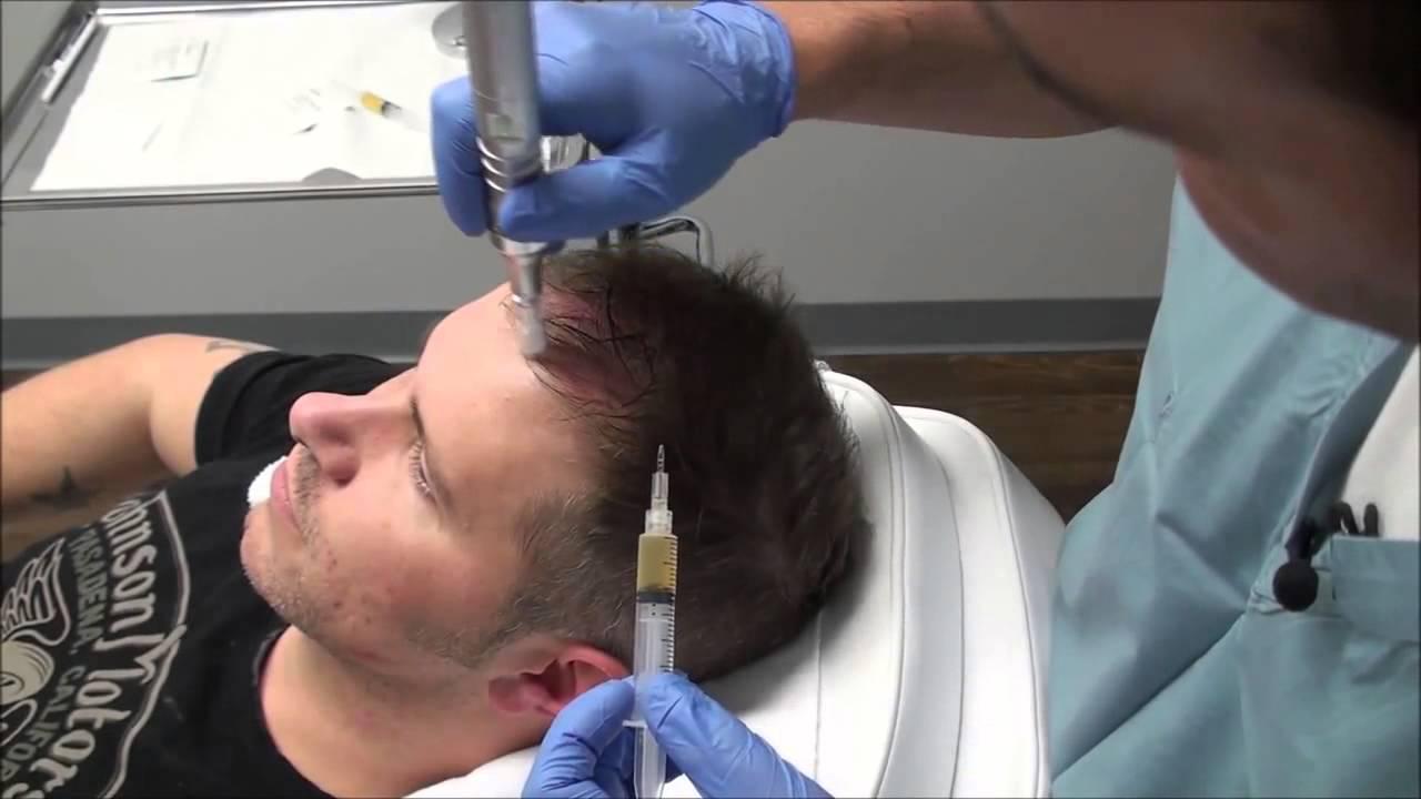 بالصور علاج تساقط الشعر للرجال , افضل طرق لوقف تساقط الشعر عند الرجال 3842 2
