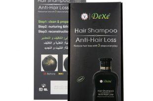 صورة علاج تساقط الشعر للرجال , افضل طرق لوقف تساقط الشعر عند الرجال