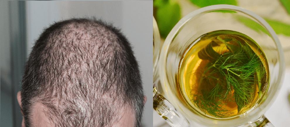 بالصور علاج تساقط الشعر للرجال , افضل طرق لوقف تساقط الشعر عند الرجال 3842
