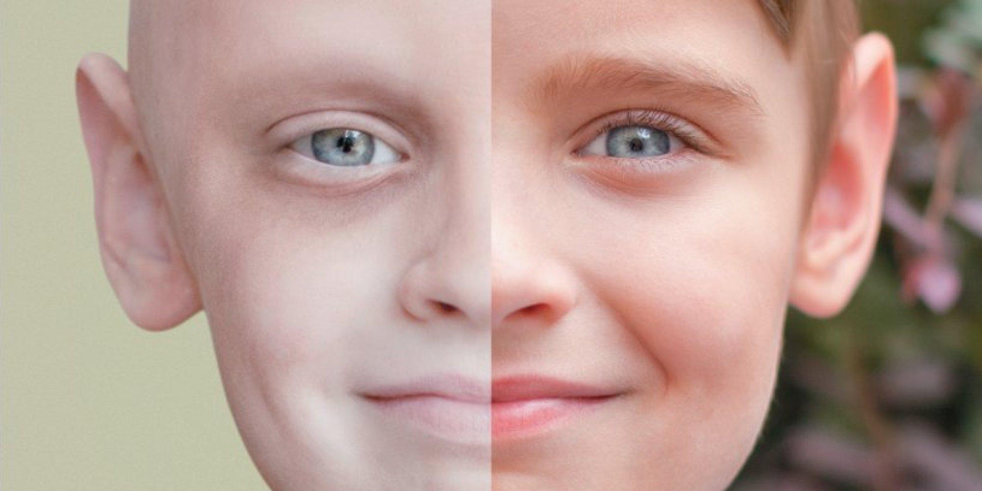بالصور اخطر انواع السرطان , اشد انواع الامراض الخبيثه خطوره 4065 1