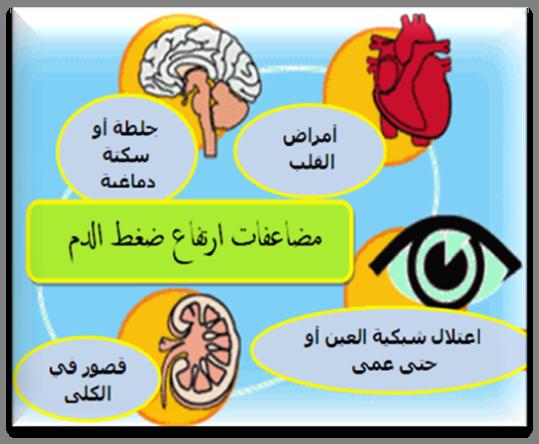 صوره اسباب ارتفاع ضغط الدم , الاسباب التى تؤدى الى ارتفاع ضغط الدم وعلاجها