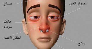 صور اعراض حساسية الانف , تعرف على حساسية الانف و اعراضها