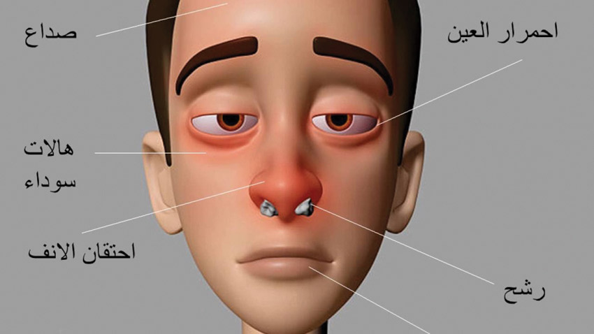صورة اعراض حساسية الانف , تعرف على حساسية الانف و اعراضها 4402