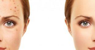 صور ازالة حبوب الوجه , وصفات طبيعية لازالة حب الشباب