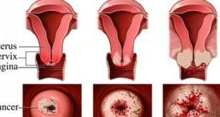 صورة اعراض سرطان الرحم , اسباب سرطان الرحم
