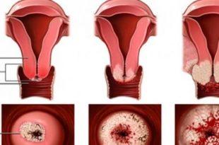 بالصور اعراض سرطان الرحم , اسباب سرطان الرحم 4736 3 310x205
