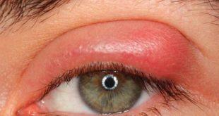 صوره العين الحمراء , اسباب احمرار العين