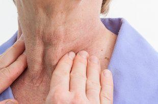صوره اعراض قصور الغدة الدرقية ٖ ما هى اعراض قصور الغدة الدرقية