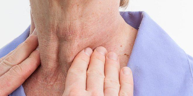صورة اعراض قصور الغدة الدرقية ٖ ما هى اعراض قصور الغدة الدرقية