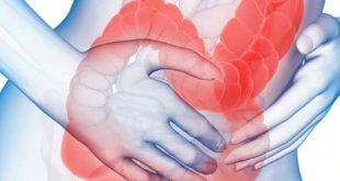 بالصور مرض القولون , تعرف علي اعراض وعلاج مرض القولون 1007 3 310x165
