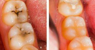 صوره علاج تسوس الاسنان , اسباب تسوس الاسنان