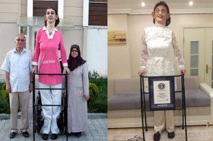 بالصور اطول امراة في العالم , ما هي اطول امراه في العالم 729 14 310x205