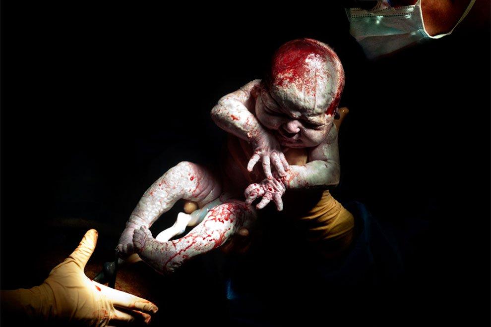 بالصور صور للولاده , اروع لقطات لحظة الولادة 792 8