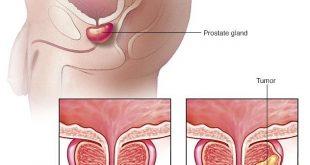 بالصور اعراض الاورام السرطانية , كيف تعرف انك مصاب بالورم السرطاني 11342 4 310x165