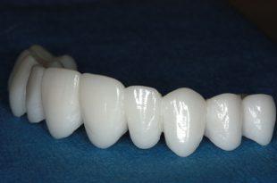 صور علاج جذور الاسنان , الاسنان الجيدة لصحة افضل