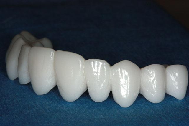 بالصور علاج جذور الاسنان , الاسنان الجيدة لصحة افضل 11867