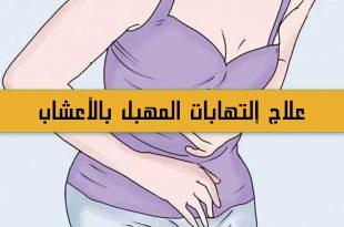 صور علاج التهابات المهبل للمتزوجات , التخلص من البكتيريا المسببة للالتهاب
