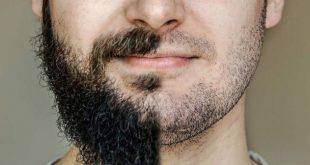 بالصور الهرمون المسؤول عن نمو شعر الذقن , هرمون التستوستيرون ووظائفه 11922 2 310x165