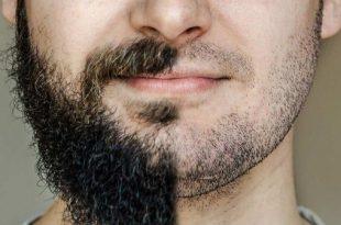 بالصور الهرمون المسؤول عن نمو شعر الذقن , هرمون التستوستيرون ووظائفه 11922 2 310x205
