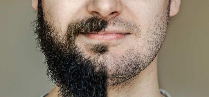 صور الهرمون المسؤول عن نمو شعر الذقن , هرمون التستوستيرون ووظائفه