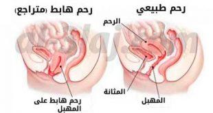 صورة اعراض هبوط المهبل , اسباب واعراض وعلاج هبوط المهبل لدي المراة