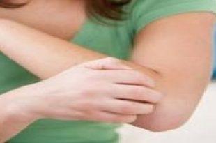 صور ماهو علاج الحساسيه , تعرف على الحساسية وطرق علاجها