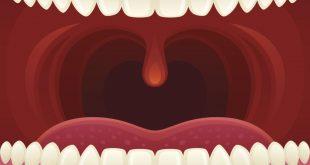 صور حبة في سقف الفم , علاج حبه سقف الفم
