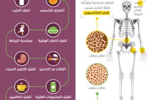 صور كلمات عن هشاشة العظام , ما هو هشاشه العظام