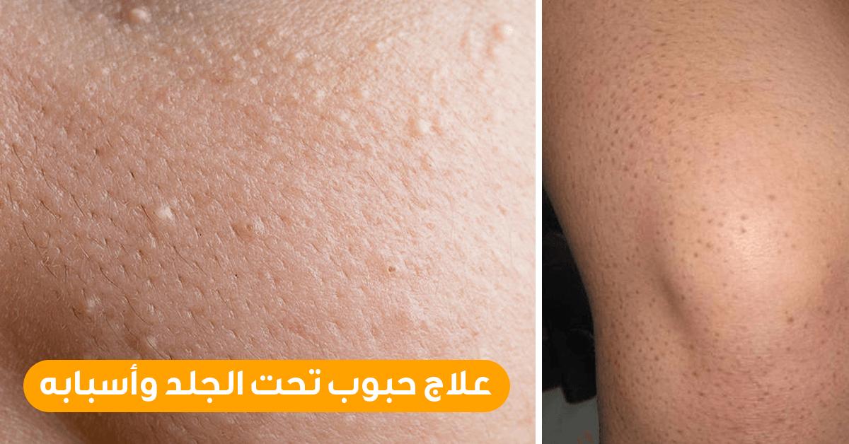 صورة علاج حبوب تحت الجلد , الحبوب تحت الجلد كيف تعالجها