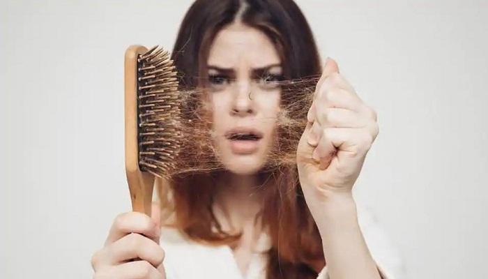 صور تساقط الشعر , اسباب فقدان الشعر وعلاجه
