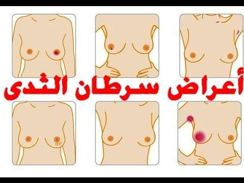 صورة اعراض سرطان الثدي , علامات الاصابه بسرطان الثديين