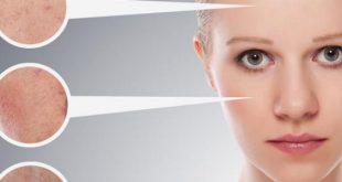صور علاج البشرة الجافة , احسن وصفات طبيعيه للبشره الجافه