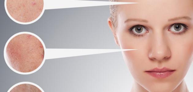 صورة علاج البشرة الجافة , احسن وصفات طبيعيه للبشره الجافه