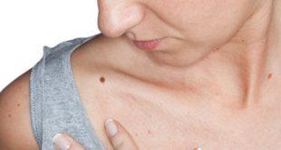 صورة اعراض سرطان الدم , علامات مرض اللوكيميا