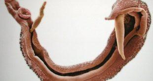 صورة مرض البلهارسيا , تعرف على مرض البلهارسيا