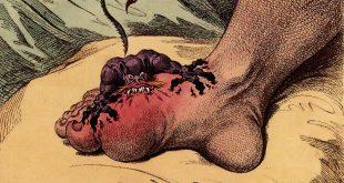 صورة مرض الطاعون , مالا تعرفه عن الموت الاسود