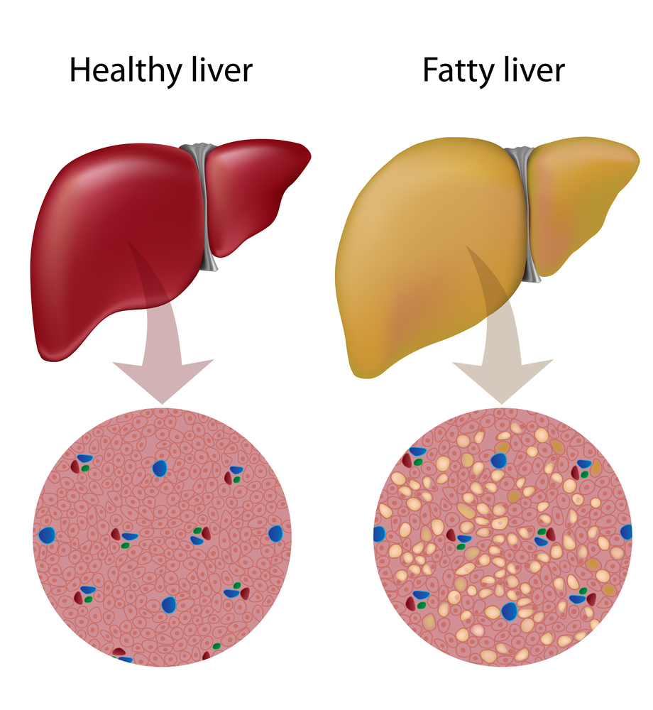 صورة اعراض مرض الكبد , مرض الكبد و اعراض ظهوره