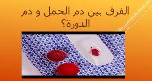 صورة الفرق بين دم الدورة ودم الحمل , علامات الحمل الاولي