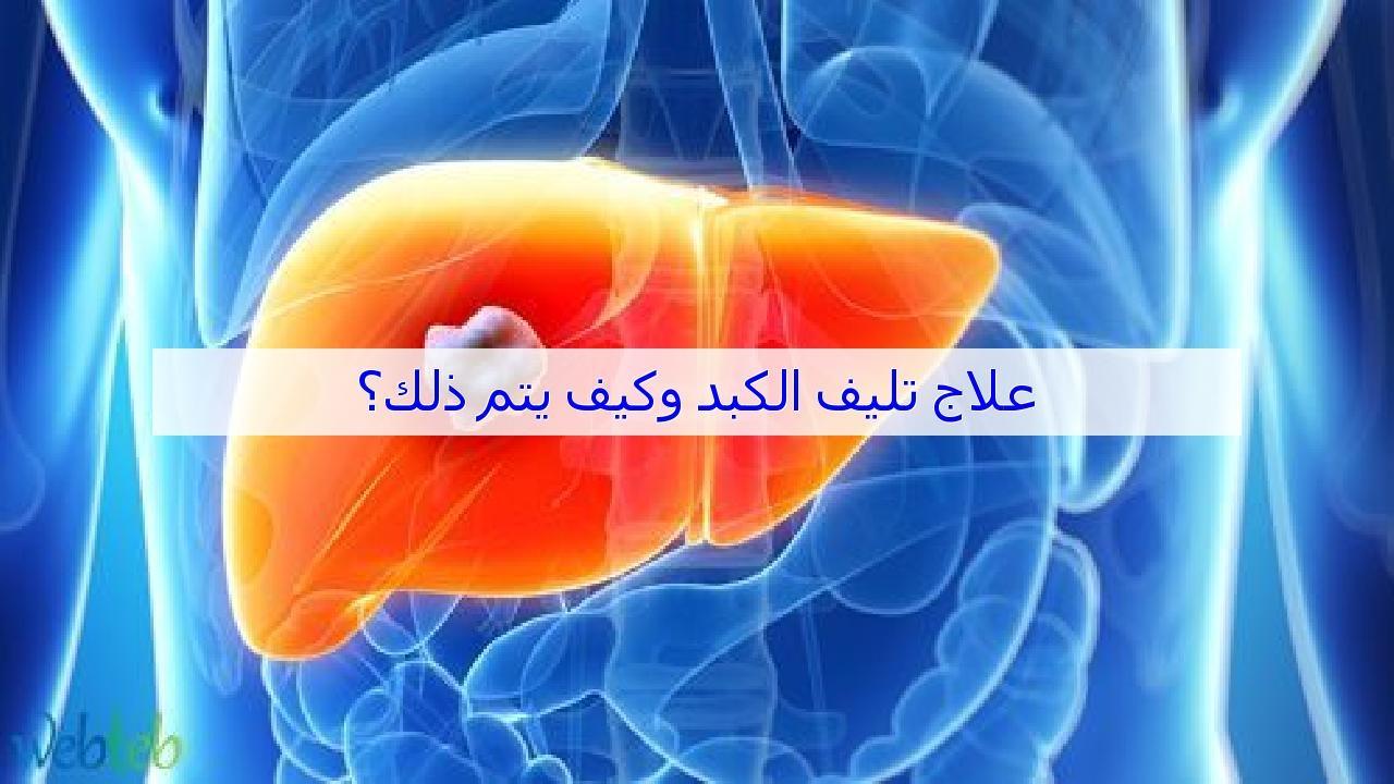 صورة علاج تليف الكبد , احمي نفسك وعائلتك من تليف الكبد