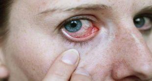 صورة حساسية عيني تعباني جدا , علاج حساسية العين